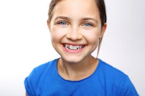 Mädchen trägt herausnehmbare Zahnspange