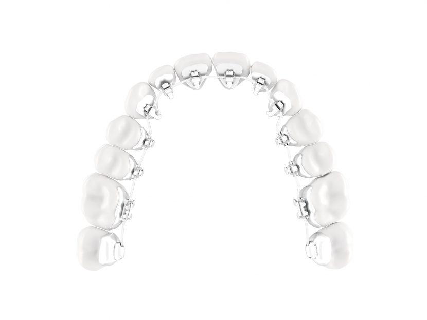 Innenliegende Zahnspange / Lingualtechnik